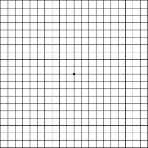 picture about Printable Amsler Grid titled Macular Degeneration - EyeDeny Eyecare + Eyewear