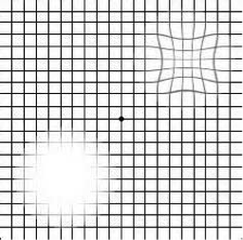 photo relating to Printable Amsler Grid called Macular Degeneration - EyeDeny Eyecare + Eyewear